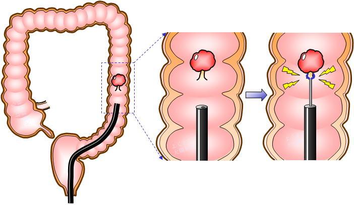 大腸ポリープ切除方法